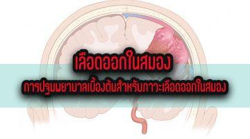 เลือดออกในสมอง การปฐมพยาบาลเบื้องต้นสำหรับภาวะเลือดออกในสมอง
